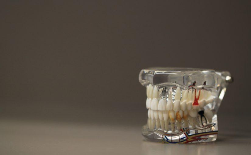 Zły sposób żywienia się to większe niedostatki w zębach a także ich zgubę